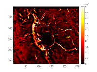 Auger electron spectroscopy image of calcium distribution surrounding an osteocyte embedded in bone.